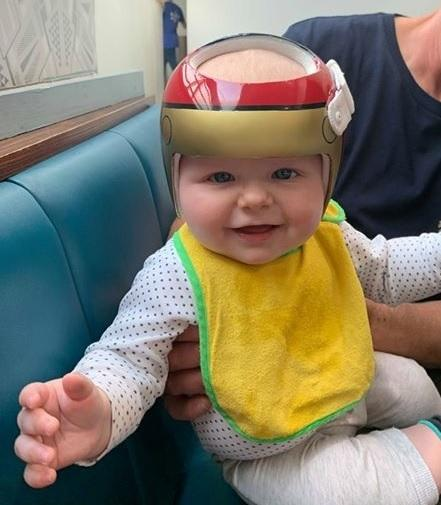Baby Samuel with his corrective headguard