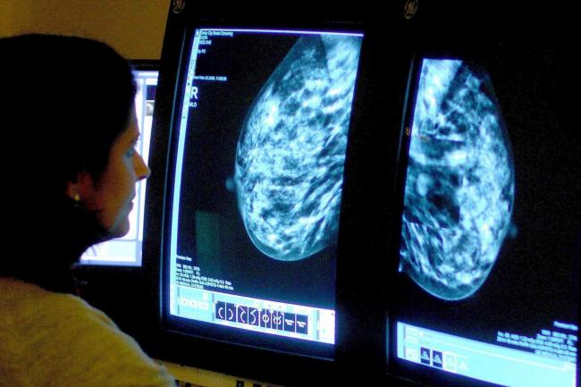 A medic looks at a mammogram